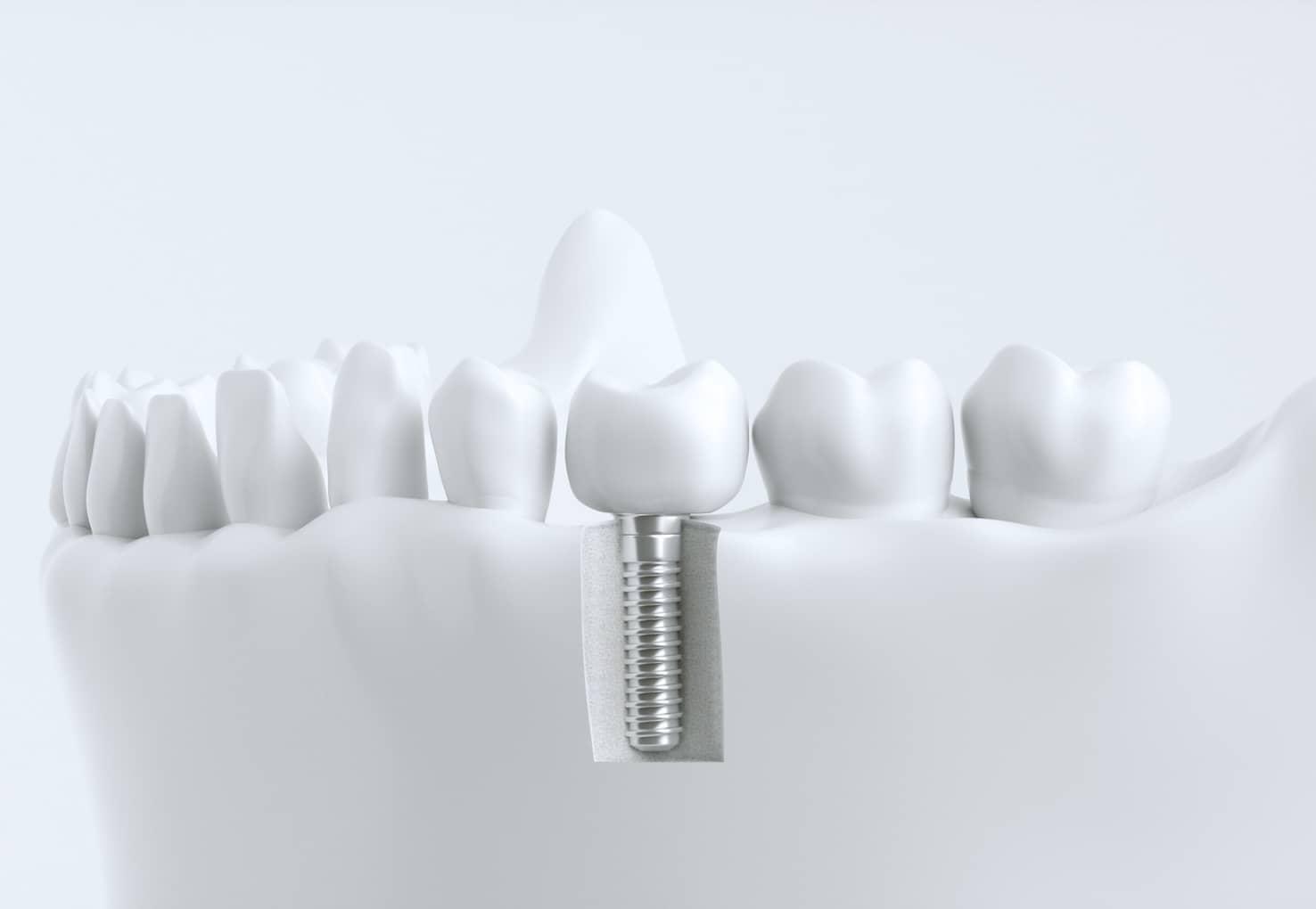 Zahnimplantat im Gebissmodell
