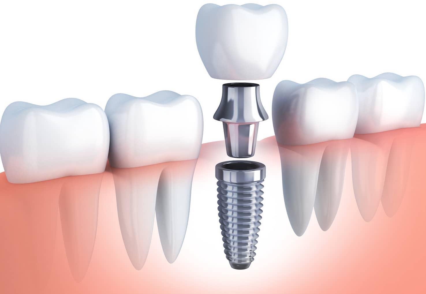 Details zum Implantat