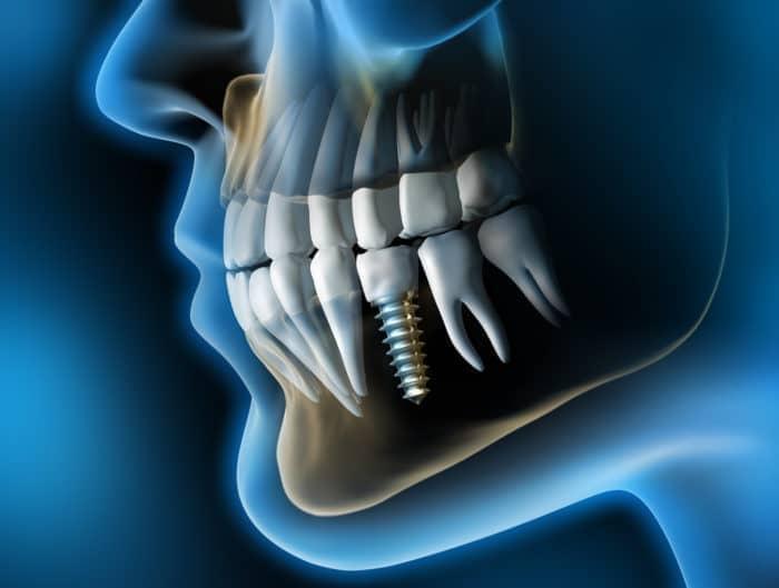 Details zu Zahnimplantaten